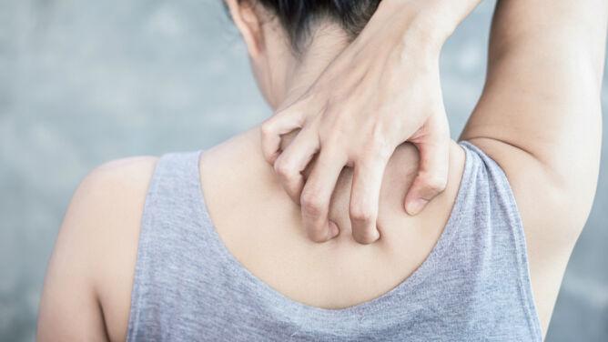 Alergia, podrażnienie, początek choroby. Co robić, gdy swędzi cię szyja?